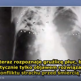 Film o zdrowiu